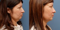 Chin Augmentation, Fat Grafting, Submental Liposuction