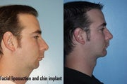 Chin Implant, Facial Liposuction