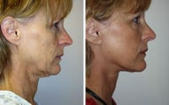 Face lift with dermabrasion front view