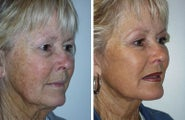 Facelift with dermabrasion