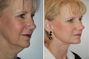 Face lift with dermabrasion