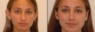 Otoplasty and Rhinoplasty
