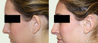 Otoplasty-Ear Surgery