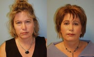 Facelift, Full Face Co2 Laser Resurfacing, Fat Transfer, Upper and Lower Blepharoplasty, Browlift