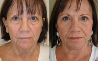 Lower Eyelids (blepharoplasty), Image Lift