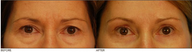 Lower & Upper Eyelid Blepharoplasty, Browlift