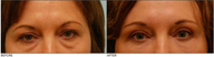 Lower & Upper Eyelid Blepharoplasty, Browlift, Fat Transfer