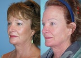 Upper Eyelid Surgery (Blepharoplasty)