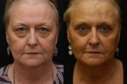 Blepharoplasty - upper and lower (Eyelid Surgery)