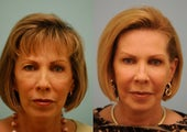 Full Face Fat Transfer and upper blepharoplasty