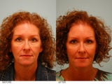 Fat Transfer and Upper Blepharoplasty
