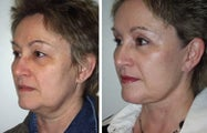 Face and neck lift side view