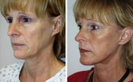 Face lift with dermabrasion side view