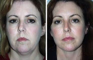 Face Lift and Brow Lift