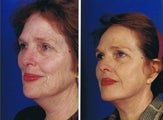 Face and necklift, Superficial cheeklift, CO2 laser resurfacing