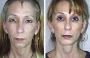 Facelift and Chin Implant