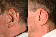 Ear Reconstruction after Cancer Excision