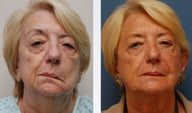 Facial Paralysis Reconstruction and Facelift