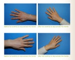 Fat Transfer to the Hands ~ YoungVolumizer Procedure