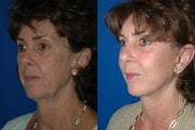 Fat Transfer to the Face with Facelift