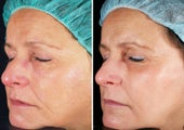 Fractional Laser Skin Resurfacing