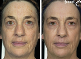 Fraxel for pigmentation and skin laxity