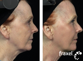 Fraxel for skin tightening