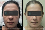 Fraxel CO2 Laser Resurfacing