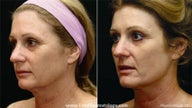 Fraxel CO2 Repair for skin tightening and sun damage