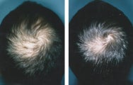 Medical treatment for hair loss (no surgery)`