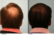 Hair Transplant to crown
