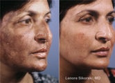 Hyperpigmentation Correction