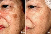 IPL for Age Spots, Hyperpigmentation