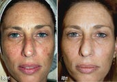 IPL for Freckles, Melasma