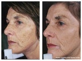 IPL for hyperpigmenation, age spots and skin tone