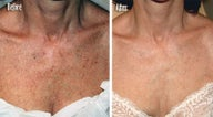 IPL for Freckles, Age Spots on Chest