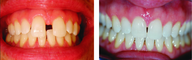 Closing large midline diastema/gap