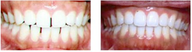 Invisalign Gallery Before-After
