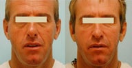 Injectable Fillers (Juvederm/Radiesse)