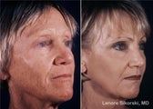 Full Face Laser Resurfacing and Upper Bleph