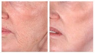 Wrinkle treatment near mouth