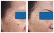 Age spot removal with laser therapy