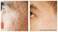 Acne scars and pock mark treatment by laser skin resurfacing