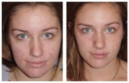 Acne treatment by laser skin resurfacing