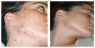Face acne treatment by laser skin resurfacing