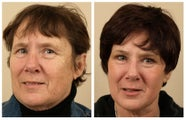 Full Face Laser Resurfacing