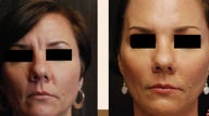Liquid Facelift using Botox and Dermal Fillers