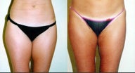 Liposuction of the inner & outer thighs