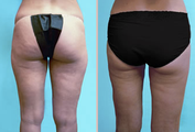 Hips - Liposuction