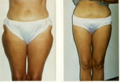 Liposuction to Thighs